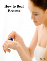 Cure Your Eczema Permanently