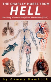The Charley Horse from Hell: Surviving a Massive Deep Vein Thrombosis (DVT)