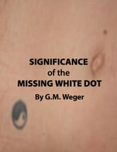 Significance of the Missing White Dot