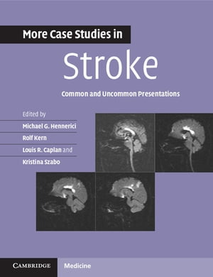 More Case Studies in Stroke Common and Uncommon Presentations