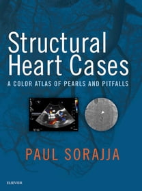 Structural Heart Cases E-Book