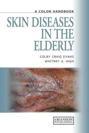Skin Diseases in the Elderly A Color Handbook