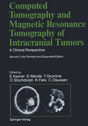 Computed Tomography and Magnetic Resonance Tomography of Intracranial Tumors