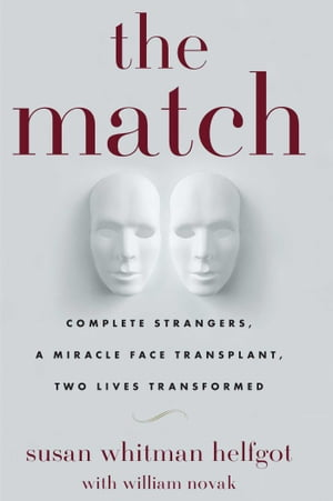 The Match Complete Strangers,  a Miracle Face Transplant,  Two Lives Transformed