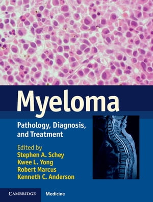 Myeloma Pathology,  Diagnosis,  and Treatment