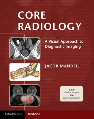 Core Radiology A Visual Approach to Diagnostic Imaging