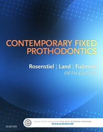Contemporary Fixed Prosthodontics - E-Book