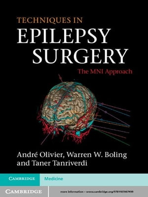 Techniques in Epilepsy Surgery The MNI Approach