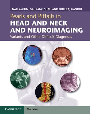 Pearls and Pitfalls in Head and Neck and Neuroimaging Variants and Other Difficult Diagnoses