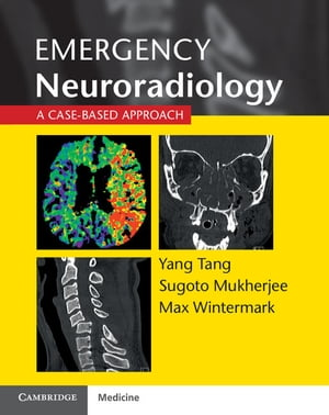 Emergency Neuroradiology A Case-Based Approach