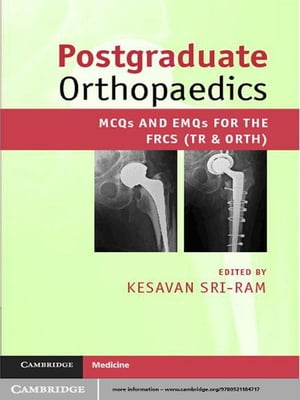 Postgraduate Orthopaedics MCQs and EMQs for the FRCS (Tr & Orth)