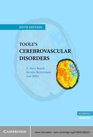 Toole's Cerebrovascular Disorders