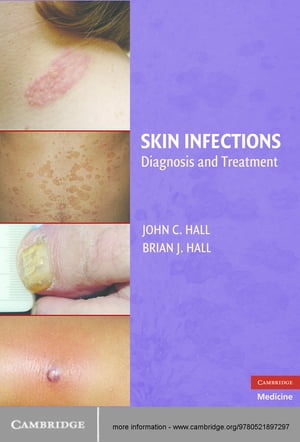 Skin Infections Diagnosis and Treatment