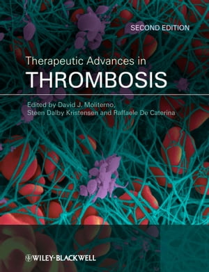Therapeutic Advances in Thrombosis