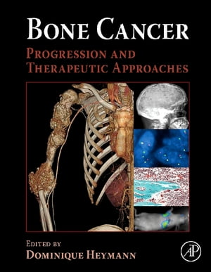 Bone Cancer Progression and Therapeutic Approaches