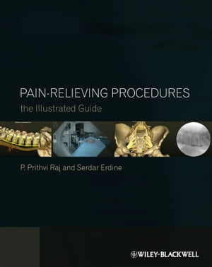 Pain-Relieving Procedures The Illustrated Guide