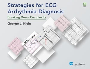 Strategies for ECG Arrhythmia Diagnosis: Breaking Down Complexity