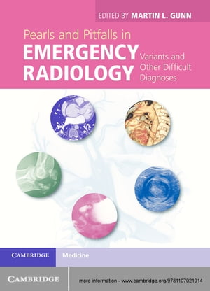 Pearls and Pitfalls in Emergency Radiology Variants and Other Difficult Diagnoses