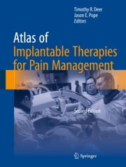 Atlas of Implantable Therapies for Pain Management ebook by Timothy R. Deer,Jason E. Pope