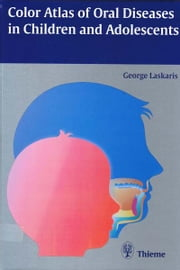 Color Atlas of Oral Diseases in Children and Adolescents ebook by George Laskaris