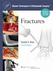 Fractures ebook by Donald Wiss