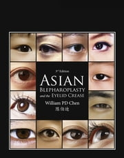 Asian Blepharoplasty and the Eyelid Crease ebook by William P. Chen