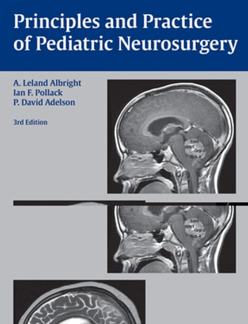 Principles and Practice of Pediatric Neurosurgery 電子書籍 by A. Leland Albright,Ian F. Pollack,P. David Adelson