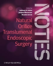 Natural Orifice Translumenal Endoscopic Surgery - Textbook and Video Atlas ebook by Anthony N. Kalloo,Jacques Marescaux MD, (Hon) FRCS, FACS, (Hon) JSES,Ricardo Zorron MD, PhD