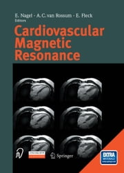 Cardiovascular Magnetic Resonance ebook by E. Nagel,A.C. van Rossum,E. Fleck