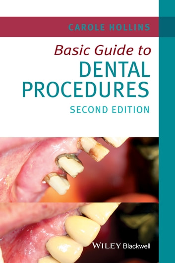 Basic Guide to Dental Procedures ebook by Carole Hollins