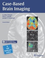 Case-Based Brain Imaging ebook by A. John Tsiouris,Joseph P. Comunale,Pina C. Sanelli