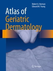 Atlas of Geriatric Dermatology ebook by Robert A. Norman,Edward M. Young, Jr