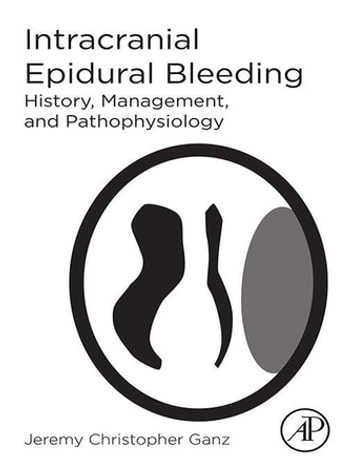 Intracranial Epidural Bleeding - History, Management, and Pathophysiology 電子書籍 by Jeremy Christopher Ganz