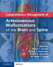 Comprehensive Management of Arteriovenous Malformations of the Brain and Spine ebook by Robert F. Spetzler,Douglas S. Kondziolka,Randall T. Higashida,M. Yashar S. Kalani