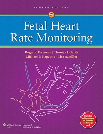 Fetal Heart Rate Monitoring ebook by Roger K. Freeman,Thomas J. Garite,Michael P. Nageotte,Lisa A. Miller