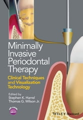 Minimally Invasive Periodontal Therapy - Clinical Techniques and Visualization Technology ebook by Stephen K. Harrel,Thomas G. Wilson Jr.