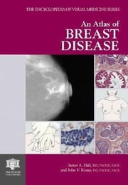 An Atlas of Breast Disease ebook by Hall, James A.
