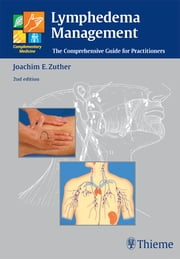 Lymphedema Management - The Comprehensive Guide for Practitioners ebook by Joachim Ernst Zuther