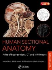 Human Sectional Anatomy: Atlas of Body Sections, CT and MRI Images, Fourth Edition ebook by Dixon, Adrian K.