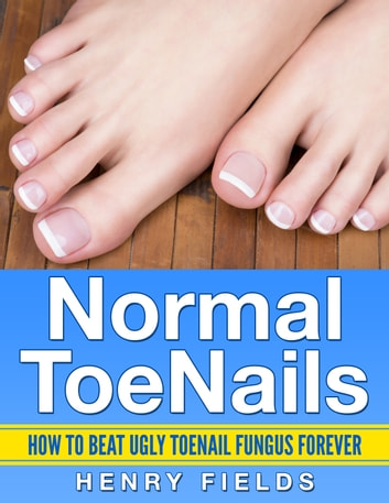 Normal ToeNails - How to Beat Ugly ToeNail Fungus Forever eBook by Henry Fields