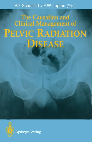 The Causation and Clinical Management of Pelvic Radiation Disease ebook by