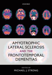 Amyotrophic Lateral Sclerosis and the Frontotemporal Dementias ebook by Michael J. Strong