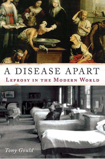 A Disease Apart - Leprosy in the Modern World ebook by Tony Gould