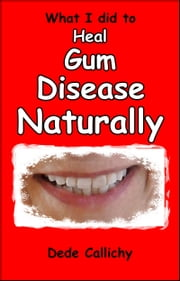 What I did to Heal Gum Disease Naturally ebook by Dede Callichy