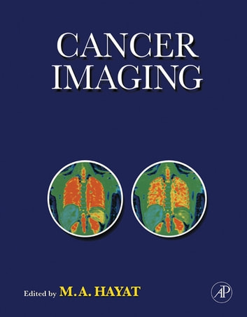 Cancer Imaging - Instrumentation and Applications ebook by M. A. Hayat