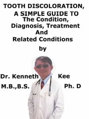Tooth Discoloration, A Simple Guide To The Condition, Diagnosis, Treatment And Related Conditions eBook by Kenneth Kee
