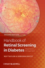 Handbook of Retinal Screening in Diabetes - Diagnosis and Management ebook by Roy Taylor,Deborah Batey