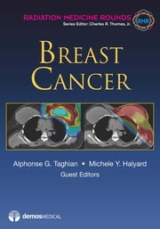 Breast Cancer ebook by Michele Y. Halyard,Alphonse G. Taghian, MD, PhD,Charles R. Thomas, MD