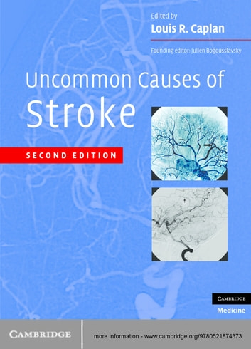 Uncommon Causes of Stroke ebook by