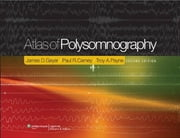 Atlas of Polysomnography ebook by James D. Geyer,Paul R. Carney,Troy Payne